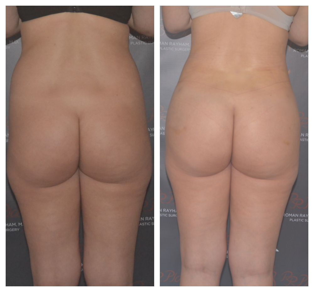 fat transfer before and after