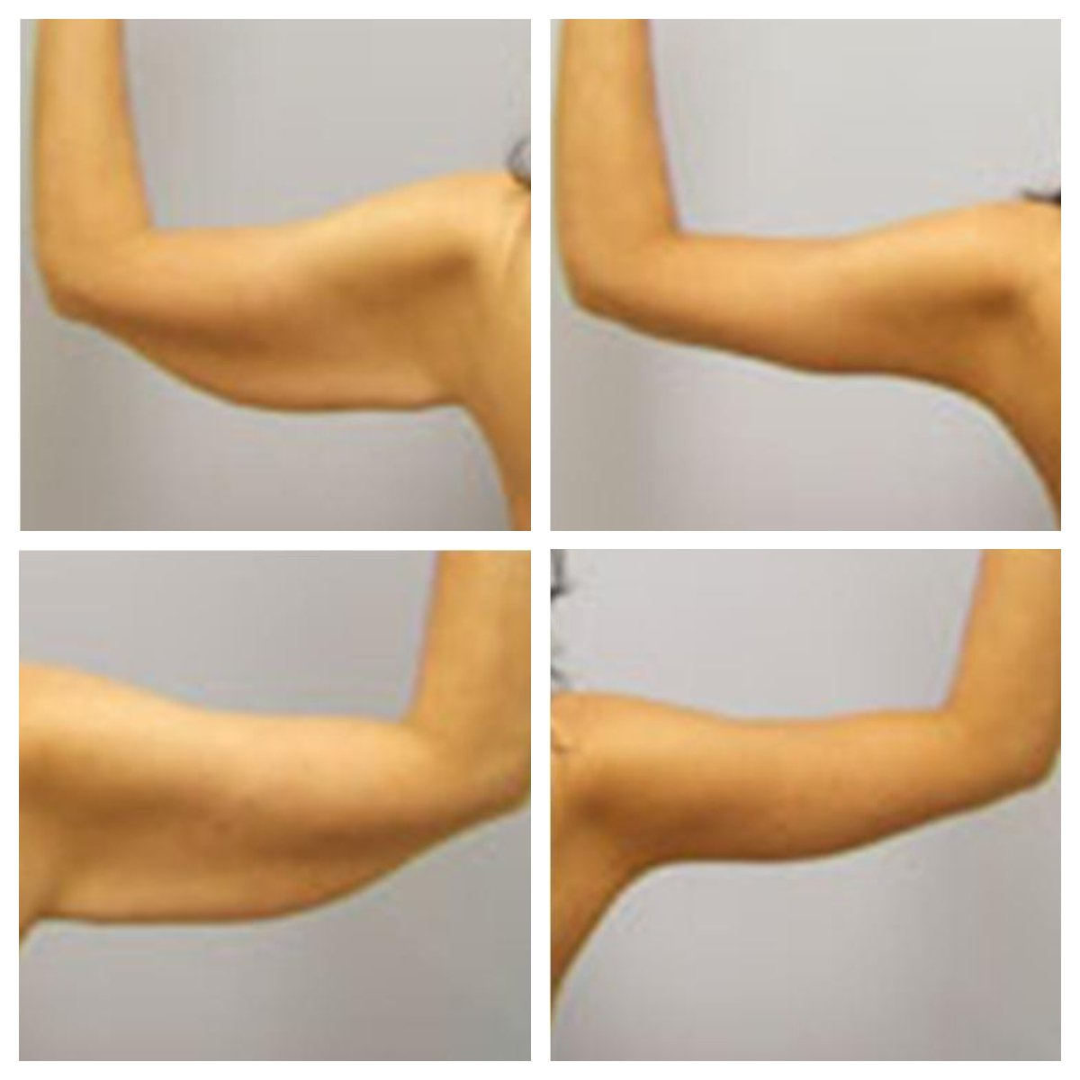 fe47963924 Arm Lift   Brooklyn Plastic Surgery