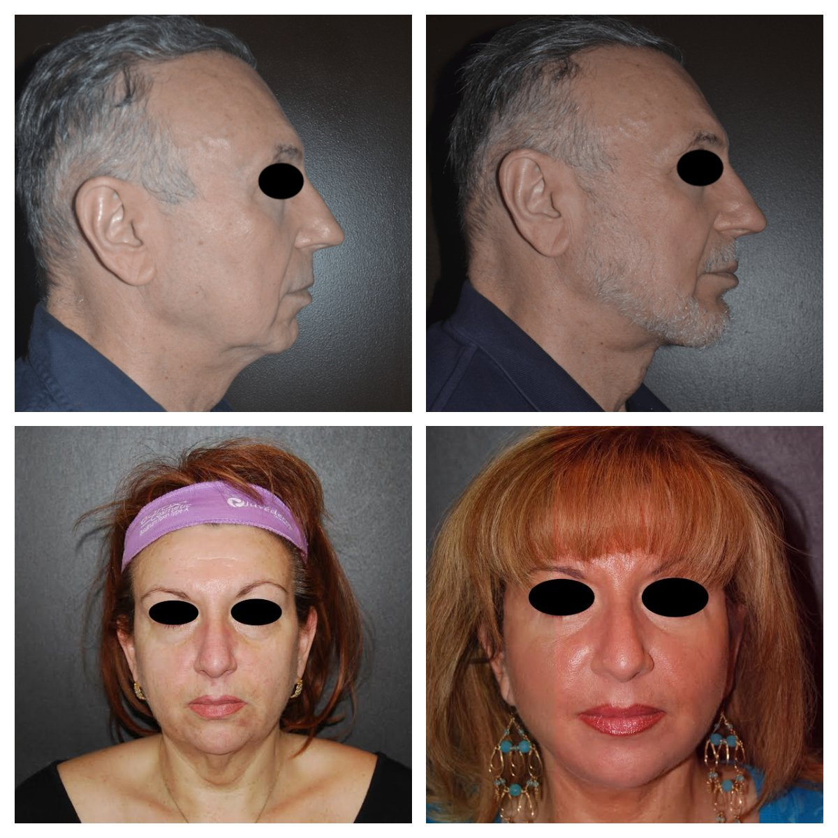 Face Lift | Brooklyn Plastic Surgery